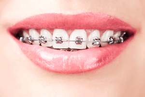 How To Keep Your Teeth Whiter With Braces