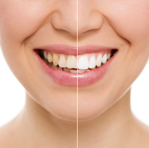 Is tooth whitening safe?